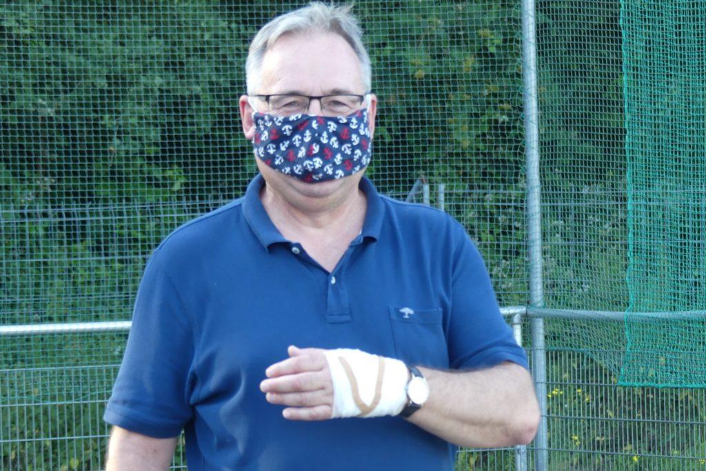 Robert Janßen, Vorsitzender des FC Frohlinde, mit seiner verletzten Hand.