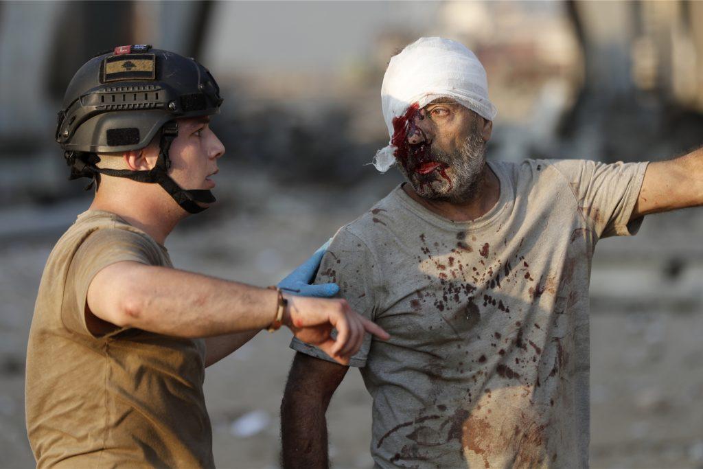 Nach aktuellem Stand wurden mehr als 4000 Menschen durch die Folgen der Explosion verletzt.