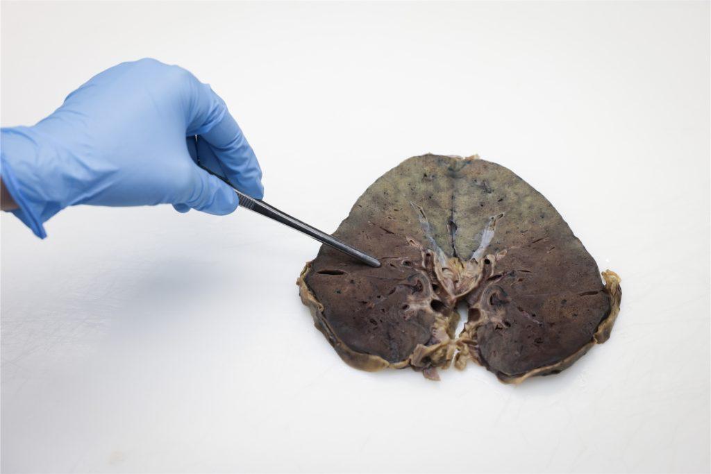 Theresa Pflaum, Assistenzärztin im Institut für Pathologie am Universitätsklinikum Schleswig-Holstein (UKSH), demonstriert die Probenentnahme am Lungenquerschnitt eines an Covid-19 verstorbenen Menschen und zeigt die typischen Veränderungen durch Corona.
